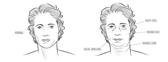 oticanje lica
